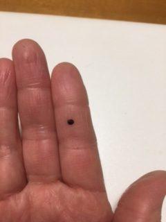 ほくろ 人差し指 人差し指のほくろの意味12個!位置別の意味&恋愛・仕事の運勢